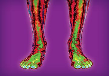 cryovizion-pieds